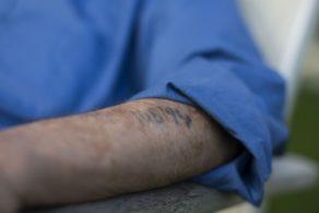 Holocaust Survivor Arm